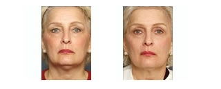 Thermage® Case 3 before and after frontal view