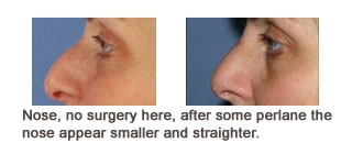 Restylane® & Perlane® Case 5 before and after frontal view