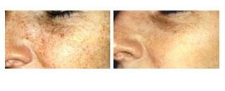 Photorejuvenation Case 1 before and after frontal view