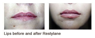 Restylane® & Perlane® Case 6 before and after frontal view