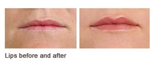 Juvederm® Case 2 before and after frontal view