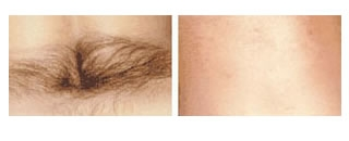 Laser Hair Removal Case 3 before and after frontal view