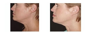 Thermage® Case 2 before and after frontal view