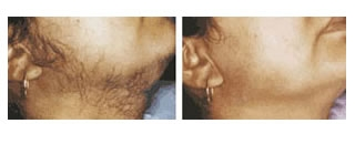Laser Hair Removal Case 2 before and after frontal view