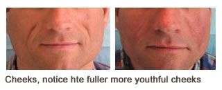 Restylane® & Perlane® Case 2 before and after frontal view