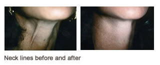 Botox  Case 4 before and after frontal view