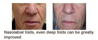 Restylane® & Perlane® Case 1 before and after frontal view