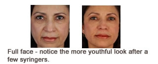 Restylane® & Perlane® Case 3 before and after frontal view