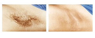 Laser Hair Removal Case 1 before and after frontal view
