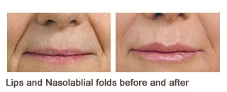 Juvederm® Case 1 before and after frontal view