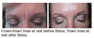 Botox  Case 1 before and after frontal view